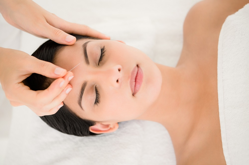 Things to Know about the Acupuncture and Its Benefits